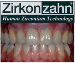 Lavoro eseguito da Dott. Andrea Damiola e dal laboratorio odontotecnico Andrea Lazetera